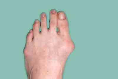 do shoe size change after bunion surgery